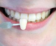 Dentaltechnik Droste GmbH